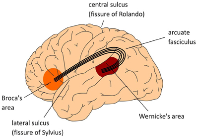 Damage on the left side of the brain to Wernicke's area, Broca's area, or the connection between them can cause aphasia. Image via Wikimedia.